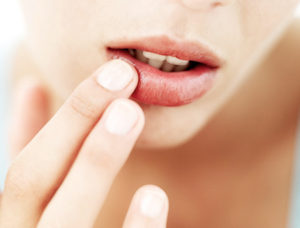 Dead lip skin