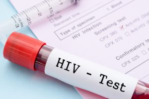 HIV test, blood sample in vial tube