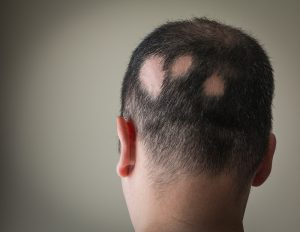 man suffering from alopecia or hair loss