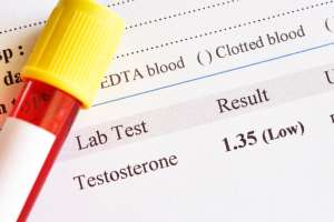 low testosterone lab test result